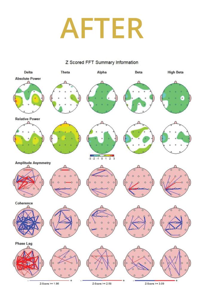 qeeg brain mapping diagram of person resolving head trauma