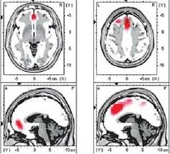 low-resolution brain electromagnetic tomography