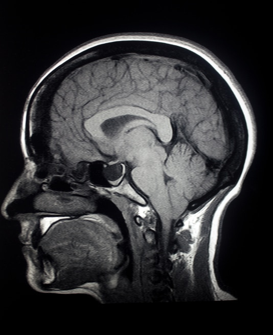 MRI image of a brain after a traumic brain injury