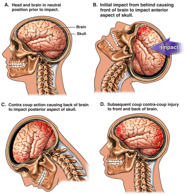 Diagram of what happens to the brain during a traumatic brain injury.