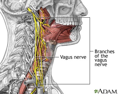 diagram of neck showing the vagus nerve and how it can be affected by whiplash