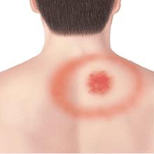 bullseye rash from tick bite