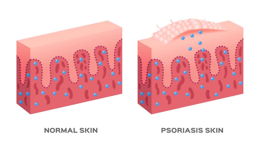 Chart of how psoriasis skin cells develop without help of naturopathic treatment